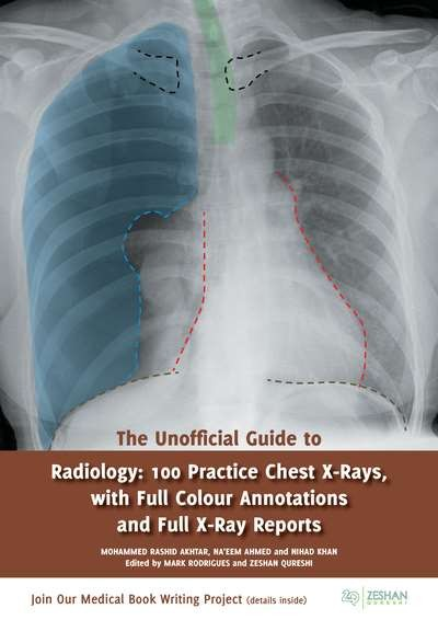 unofficial guide to radiology 100 practice chest x rays with full
