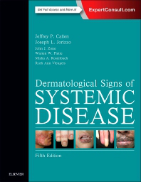 dermatological signs of systemic disease 5th ed 洋書 南江堂