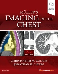 Muller's Imaging of the Chest, 2nd ed.