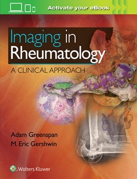 Imaging in Rheumatology- A Clinical Approach