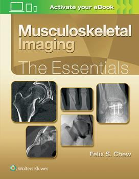 Musculoskeletal Imaging- The Essentials